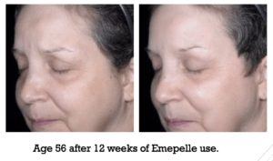 Age 56 after 12 weeks of Emepelle use.