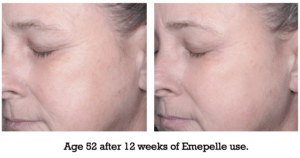Age 52 after 12 weeks of Emepelle use.